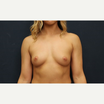 25-34 year old woman treated with Breast Augmentation before 3344948