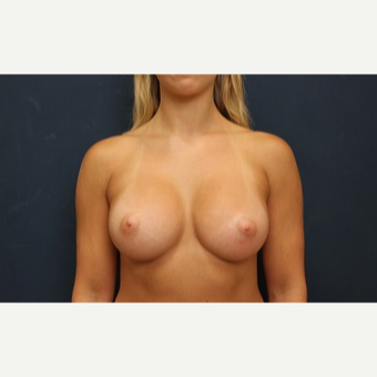 25-34 year old woman treated with Breast Augmentation after 3344948