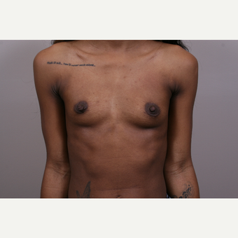 18-24 year old woman treated with Breast Augmentation before 3769337
