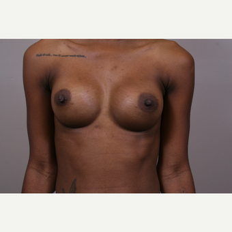 18-24 year old woman treated with Breast Augmentation after 3769337