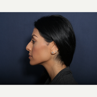 25-34 year old woman treated with Rhinoplasty (view 2 of 2) before 3406700