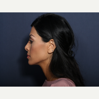 25-34 year old woman treated with Rhinoplasty (view 2 of 2) after 3406700