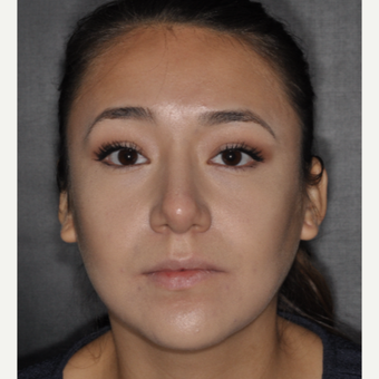 18-24 year old woman treated with Buccal Fat Removal 1 year post-op after 3708624