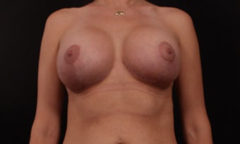 35-44 year old woman treated with Breast Lift with Implants after 3446036