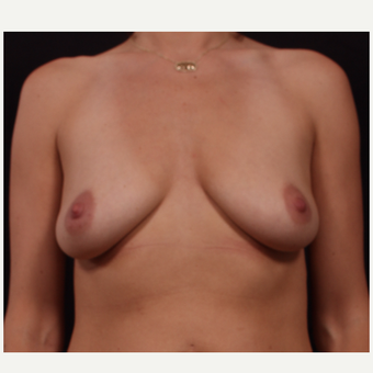 35-44 year old woman treated with Breast Lift with Implants before 3446036