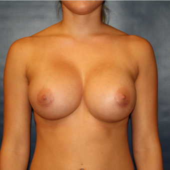 18-24 year old woman treated with Breast Augmentation after 2725435