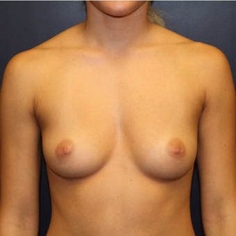 18-24 year old woman treated with Breast Augmentation before 2725435