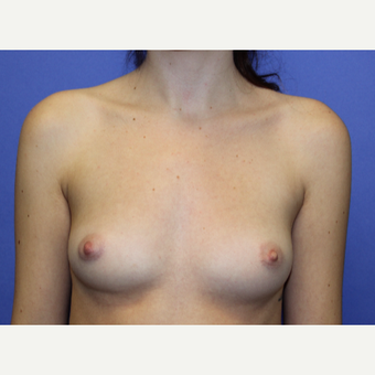 18-24 year old woman treated with Breast Augmentation before 3201088