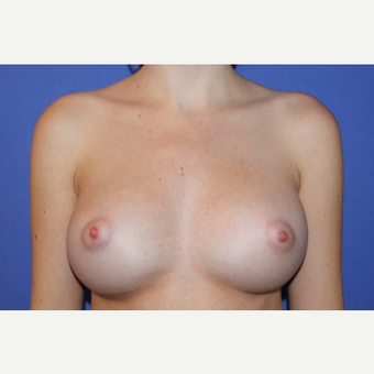 18-24 year old woman treated with Breast Augmentation after 3201088