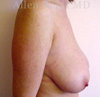 35-44 year old woman treated with Breast Reduction 2281213