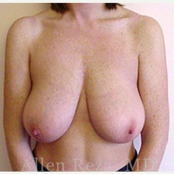 35-44 year old woman treated with Breast Reduction before 2281213