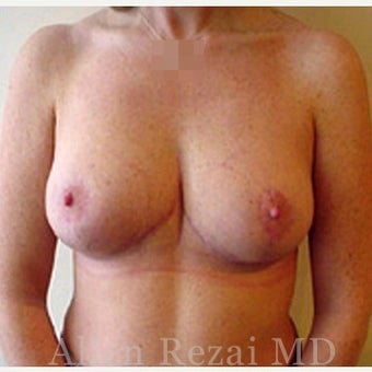35-44 year old woman treated with Breast Reduction after 2281213