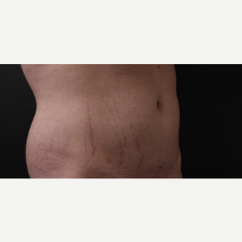 30 year old man treated with CoolSculpting after 3630360