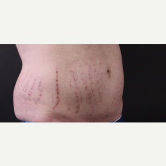 30 year old man treated with CoolSculpting before 3630360