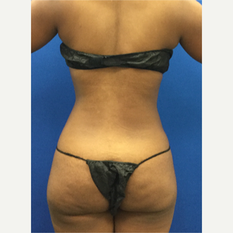 25-34 year old woman treated with Liposuction after 3142171