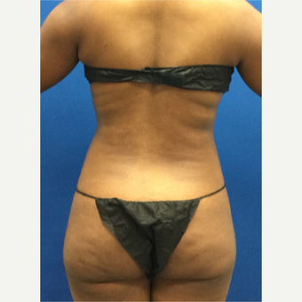 25-34 year old woman treated with Liposuction before 3142171
