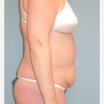 40 year old woman treated with Tummy Tuck before 3343732