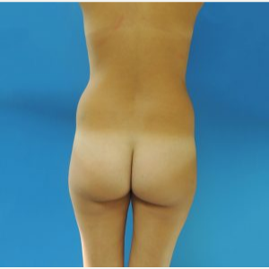 25-34 year old woman treated with Brazilian Butt Lift before 3749155