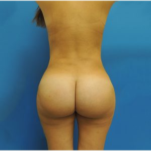 25-34 year old woman treated with Brazilian Butt Lift after 3749155