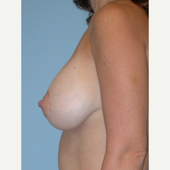 25-34 year old woman treated with Breast Implants after 3070977