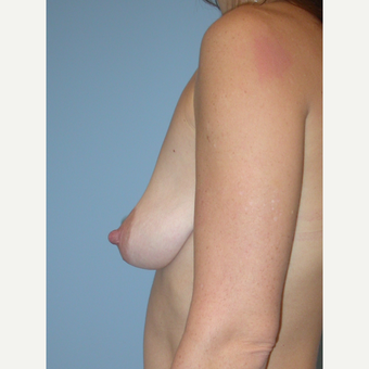 25-34 year old woman treated with Breast Implants before 3070977