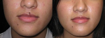 Mole Removal photos before 951888