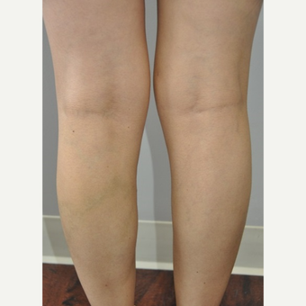 35-44 year old woman treated with Vein Treatment after 2727723