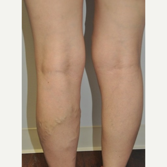 35-44 year old woman treated with Vein Treatment before 2727723