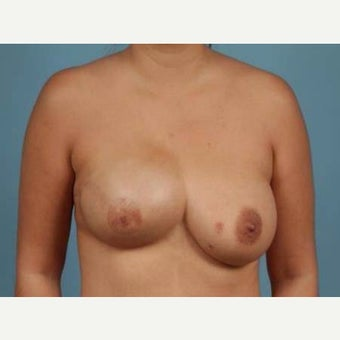 Breast Reconstruction Revision before 2389481