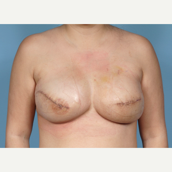 Breast Reconstruction Revision after 2389481