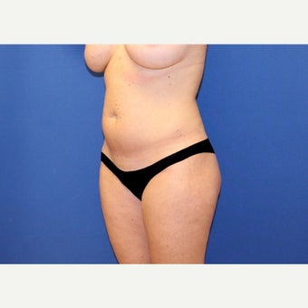 45 year old woman treated with Mini Tummy Tuck and Contour Liposuction before 2515628