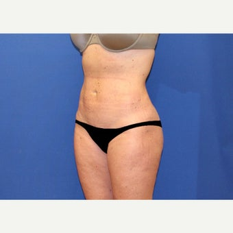 45 year old woman treated with Mini Tummy Tuck and Contour Liposuction after 2515628