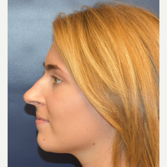 18-24 year old woman treated with Nose Surgery before 3251904