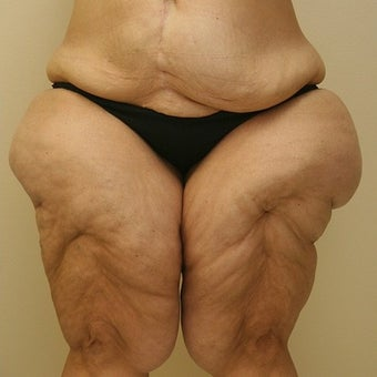 35-44 year old woman treated with Thigh Lift before 1748368