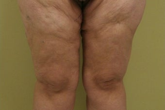 35-44 year old woman treated with Thigh Lift after 1748368
