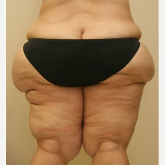 35-44 year old woman treated with Thigh Lift 1748368