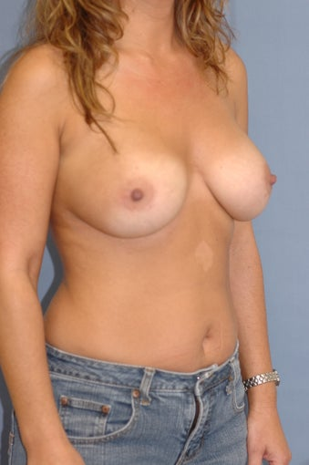 35-44 year old woman treated with Breast Augmentation 1831723