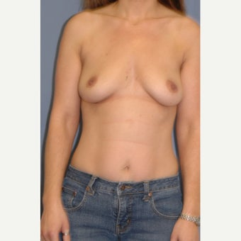 35-44 year old woman treated with Breast Augmentation before 1831723