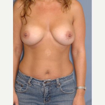 35-44 year old woman treated with Breast Augmentation after 1831723