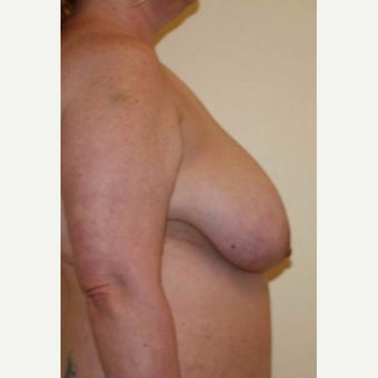 45-54 year old woman treated with Breast Reduction before 2484474