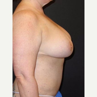 45-54 year old woman treated with Breast Reduction after 2484474