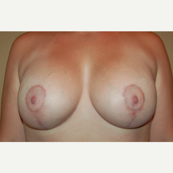 35-44 year old woman treated with Breast Lift with Implants after 3169504