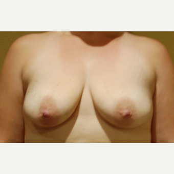 35-44 year old woman treated with Breast Lift with Implants before 3169504