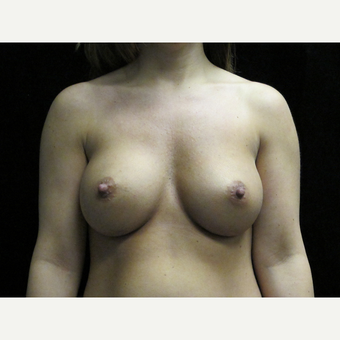 25-34 year old woman treated with Breast Augmentation after 3424971