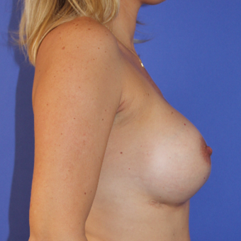 35-44 year old woman treated with Breast Augmentation after 3201170