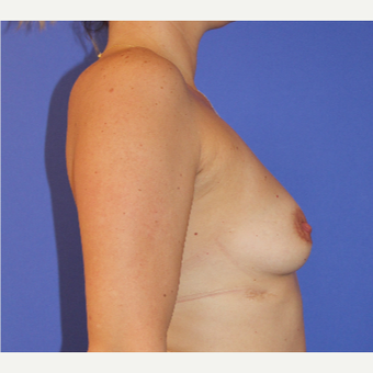 35-44 year old woman treated with Breast Augmentation before 3201170