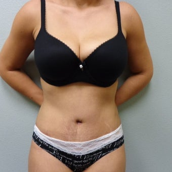 25-34 year old woman treated with Tummy Tuck after 2309413