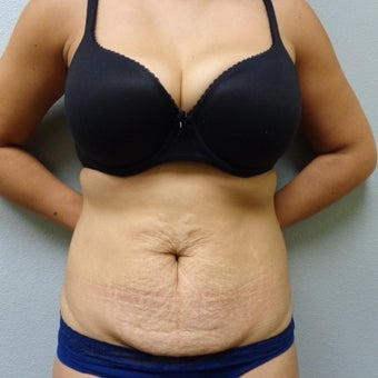 25-34 year old woman treated with Tummy Tuck before 2309413