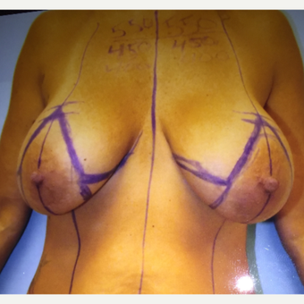 45-54 year old woman treated with Breast Augmentation before 3384571