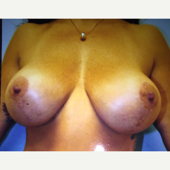 45-54 year old woman treated with Breast Augmentation after 3384571
